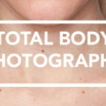 Total Body Photography at Lotus Dermatology