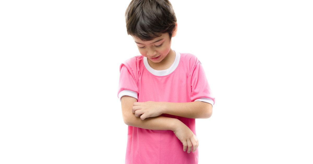 Treating Childhood Atopic Eczema