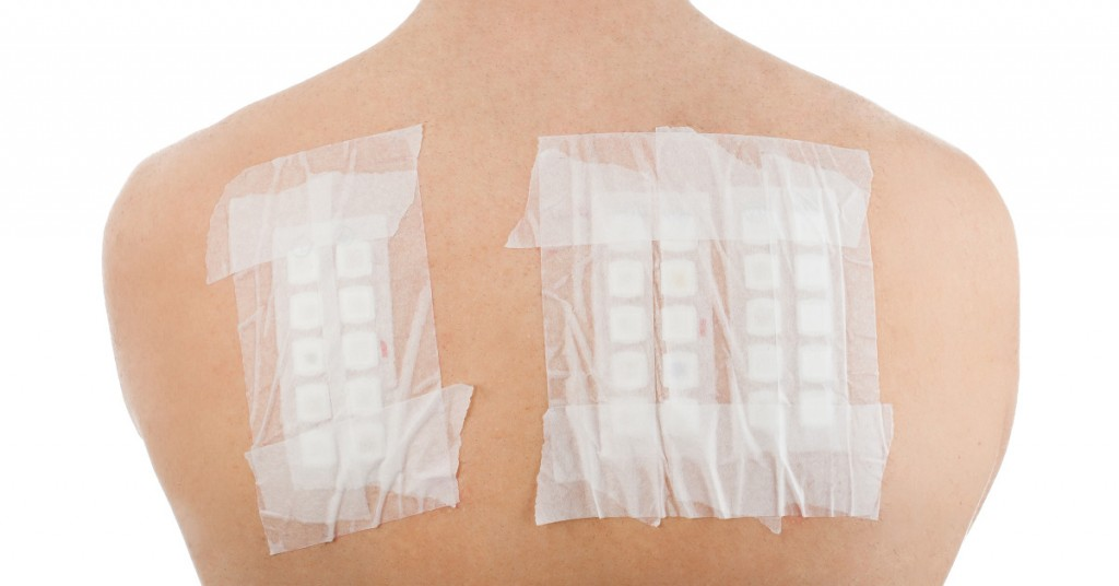 Patch Testing at Lotus Dermatology