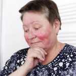 elderly woman with rosacea