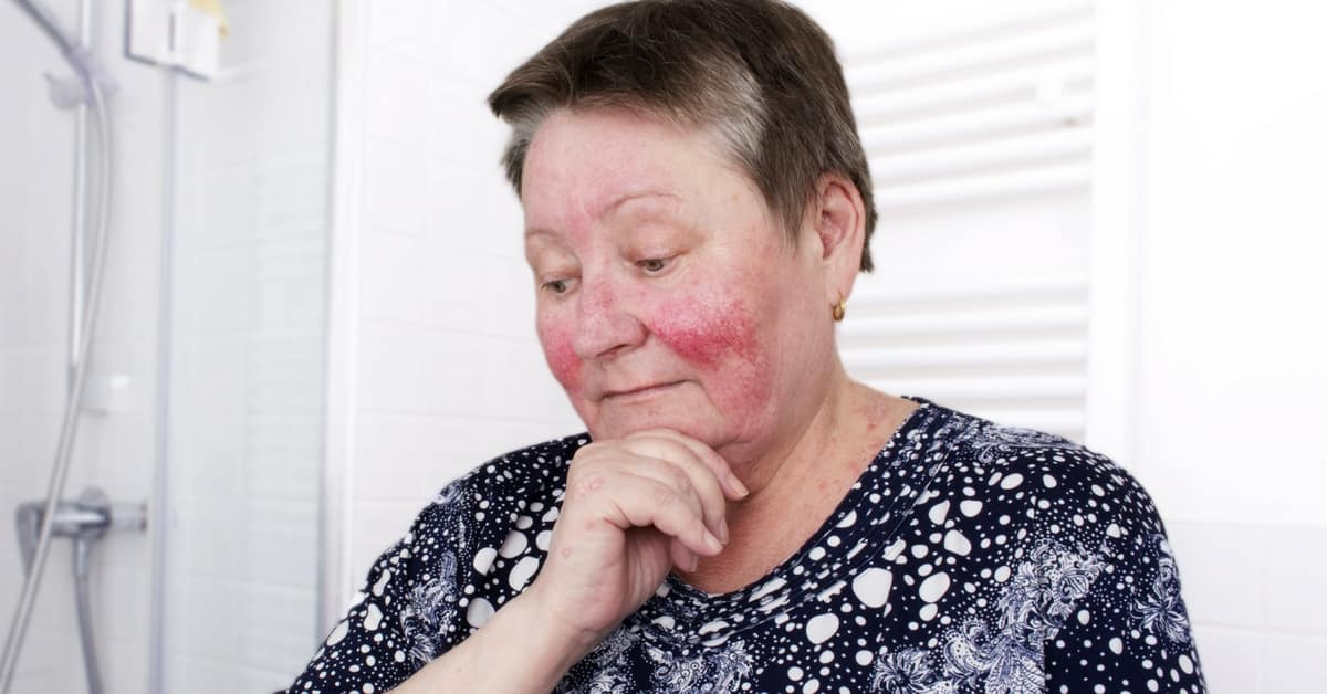 elderly woman with rosacea