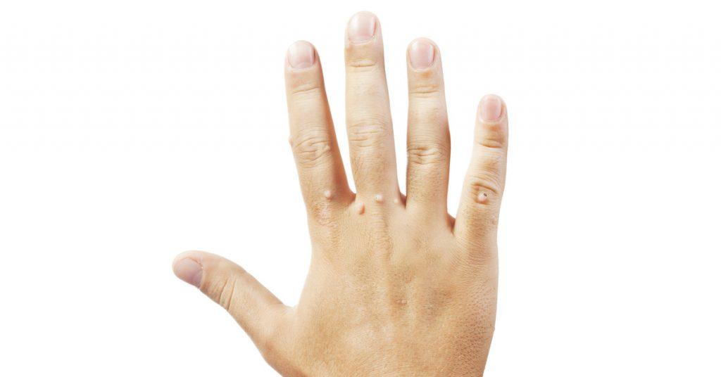 Treating Warts at Lotus Dermatology